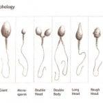 Abnormal sperm morphology