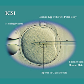 ICSI-IVF-1.png