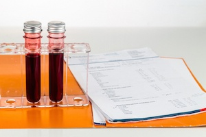 ovarian-reserve-testing-2